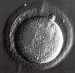 Fertilized human egg